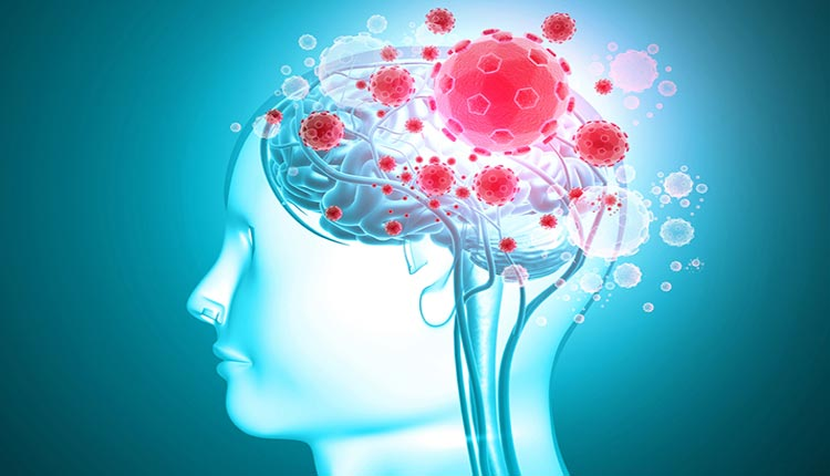 Covid-19 Brain Complications Found Across The Globe: Lancet