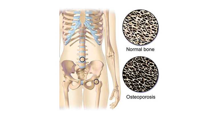 Vitamin D Deficiency Lead To Higher Osteoporosis & Poor Bone Health