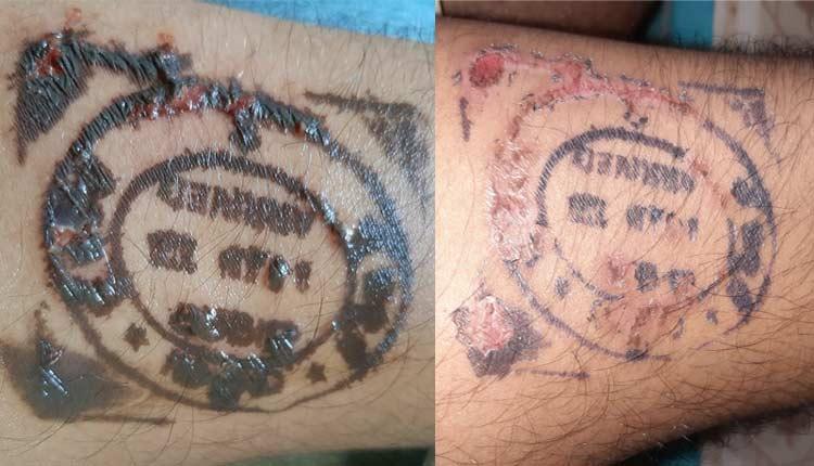 Odisha Returnees Fume After Quarantine Stamp Leaves Skin Burns, Blisters