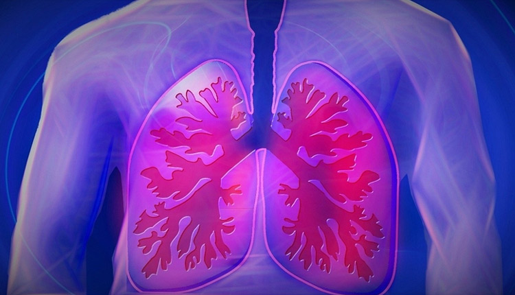 Respiratory Failure In Covid-19 Not Driven By Cytokine Storm, Reveals Study